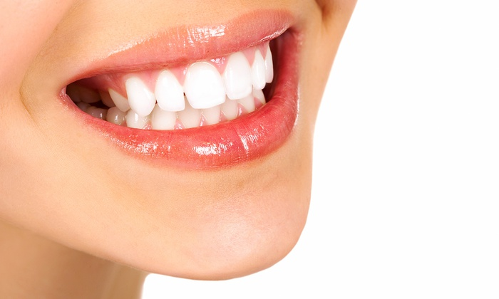 Icing Teeth Whitening Reviews