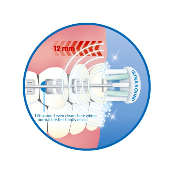 An electric toothbrush is a toothbrush that makes rapid automatic bristle motions, either back-and-forth oscillation or rotation-oscillation (where the brush head alternates clockwise and counterclockwise rotation), in order to clean uninewz.gas at sonic speeds or below are made by a uninewz.ga the case of ultrasonic toothbrushes, ultrasonic motions are produced by a piezoelectric crystal.